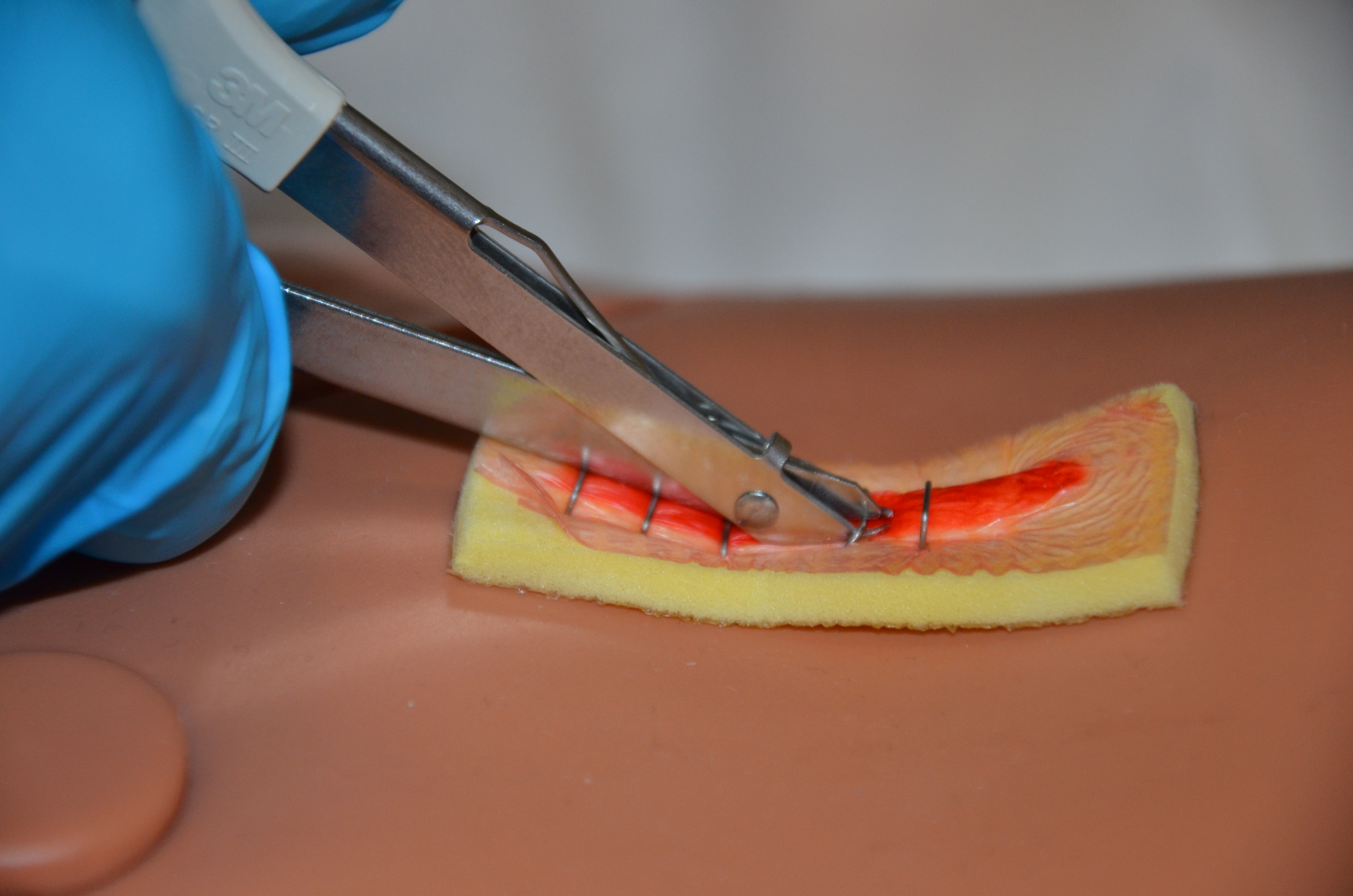 4 5 Staple Removal – Clinical Procedures for Safer Patient Care