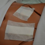 Prepare patient and expose wound