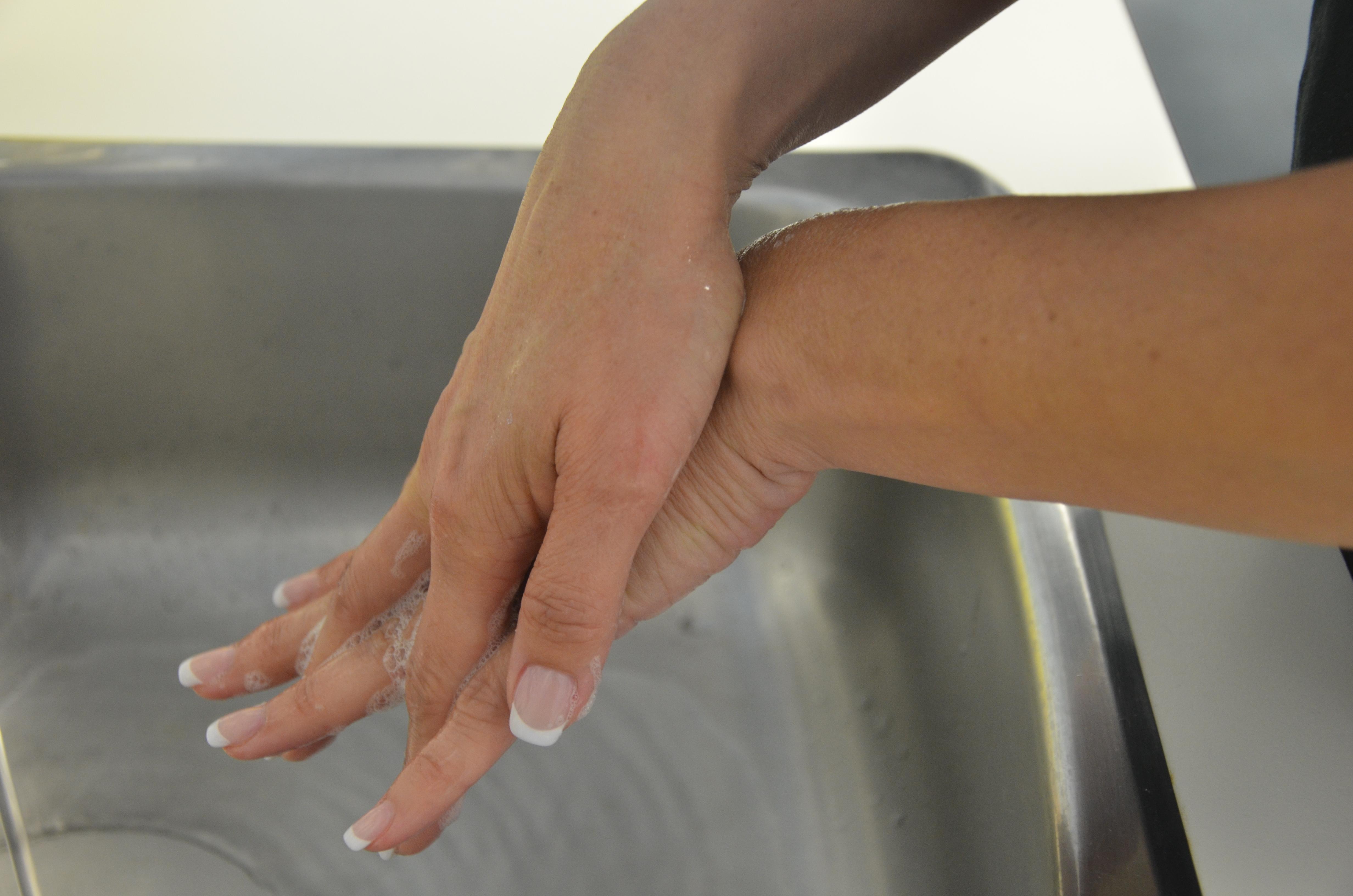 how to help soithe a burn on finger