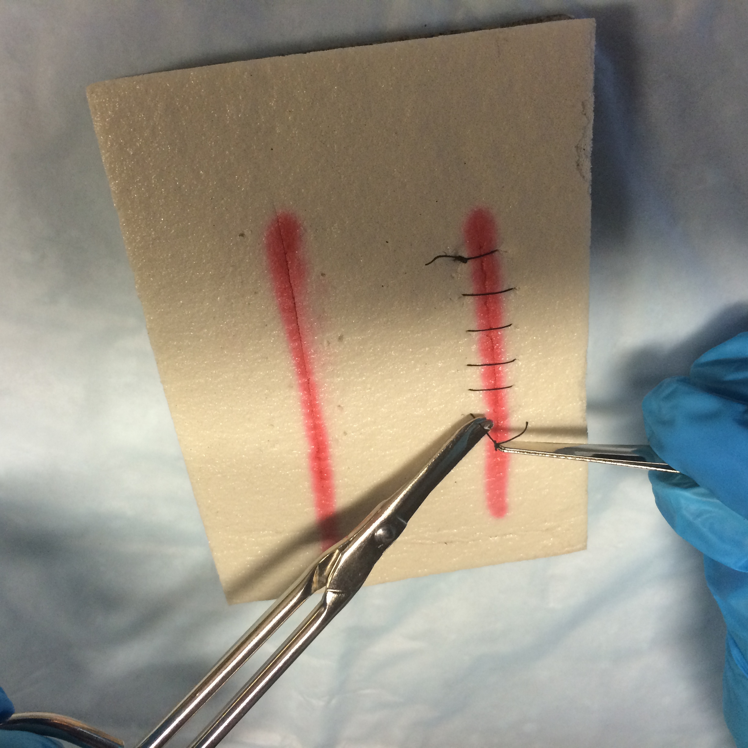 4 4 Suture Removal – Clinical Procedures for Safer Patient Care