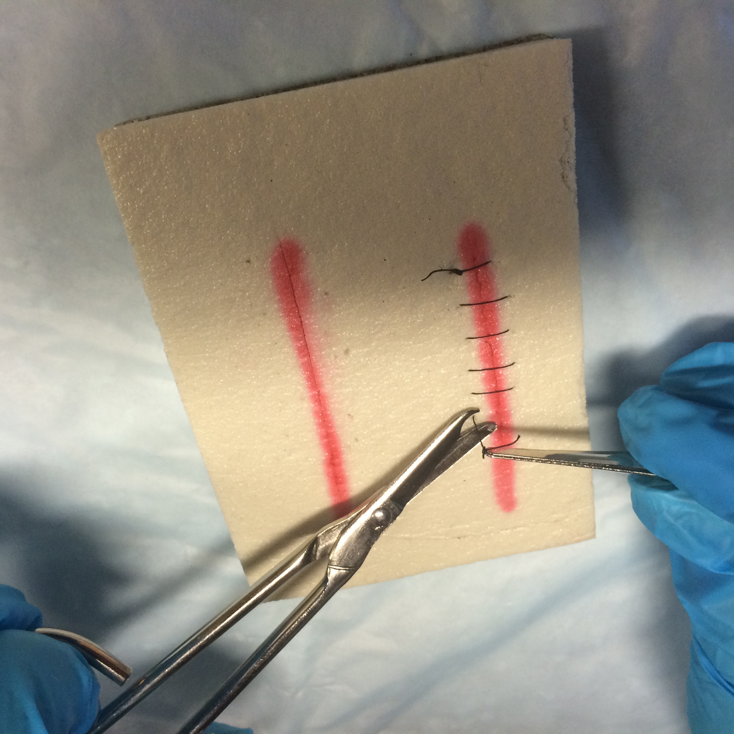 4 4 suture removal clinical procedures for safer patient care