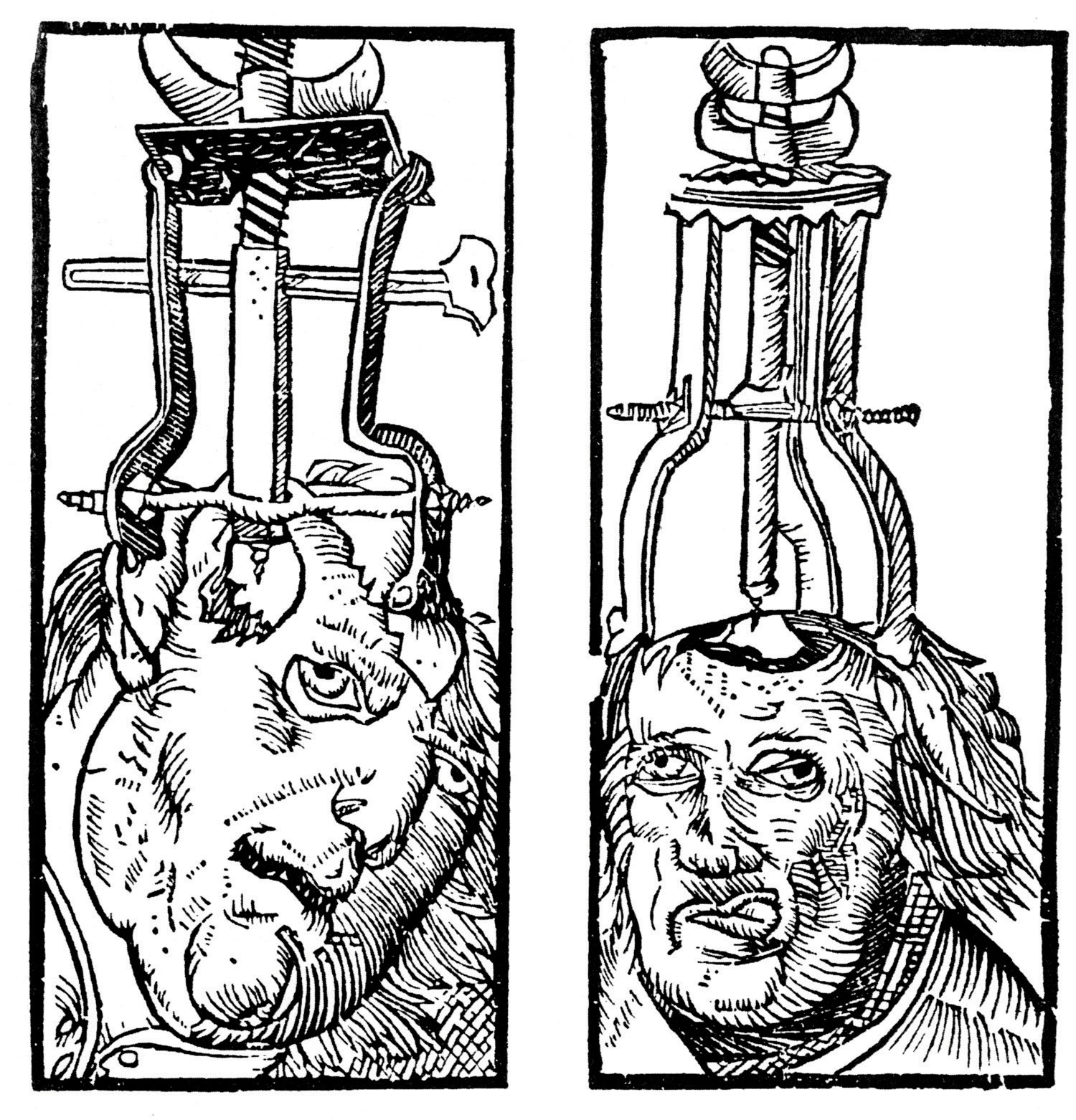 A drawing of holes being drilled into the skull.