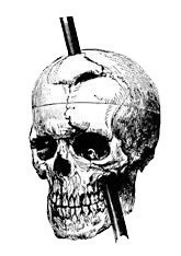 A skull with a bar piercing down through the top of the head and through the jaw.