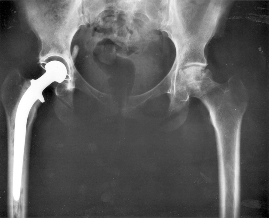 An x-ray image of a person's hips. The right hip joint (on the left in the photograph) has been replaced. A metal prosthesis is cemented in the top of the right femur and the head of the femur has been replaced by the rounded head of the prosthesis. A white plastic cup is cemented into the acetabulum to complete the two surfaces of the artificial ball and socket joint.
