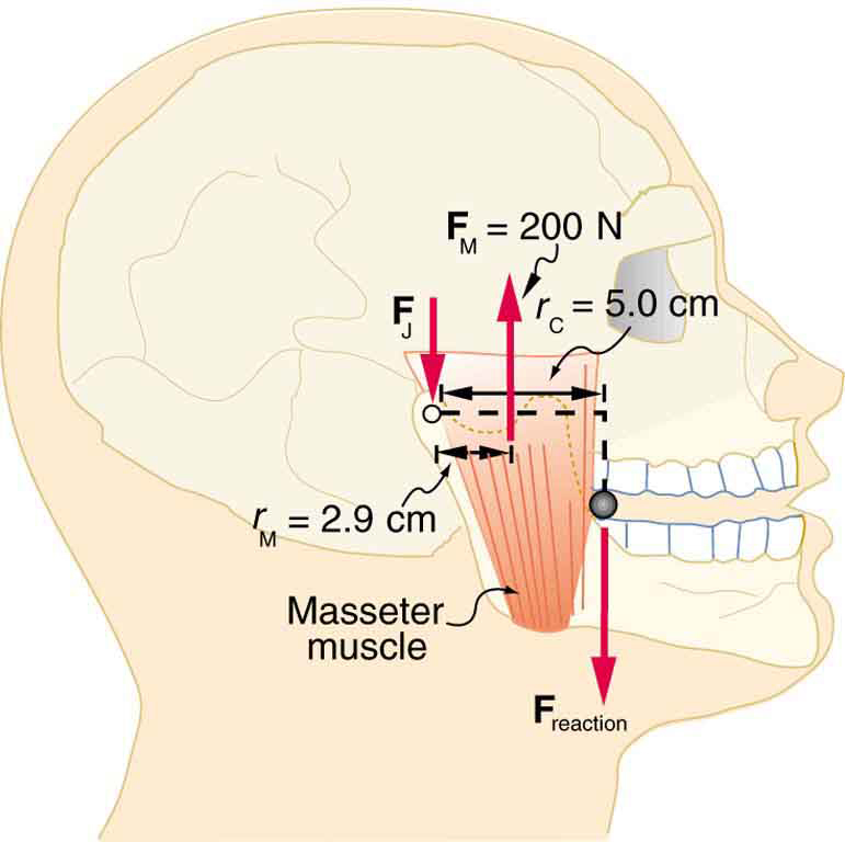 The masseter muscles of a jaw of a man are shown. The force F sub M is equal to two hundred newtons and is acting on the muscle in upward direction and the force F sub J is acting to the left end of the muscle downward. The span of the muscle at upper part is five centimeters. At the joint of jaw, the reaction force is downward.
