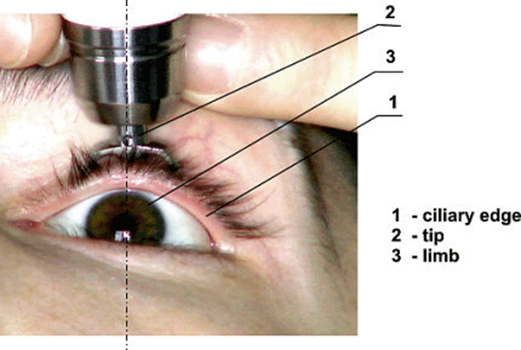 The tonometer being used by an eye care professional to determine the fluid pressure inside the eye.