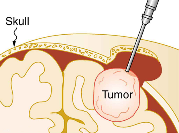 A picture of a brain tumor being removed from the skull using a clinical probe.