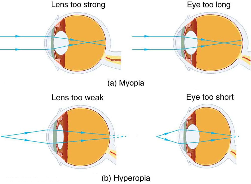 Vision Correction College Physics