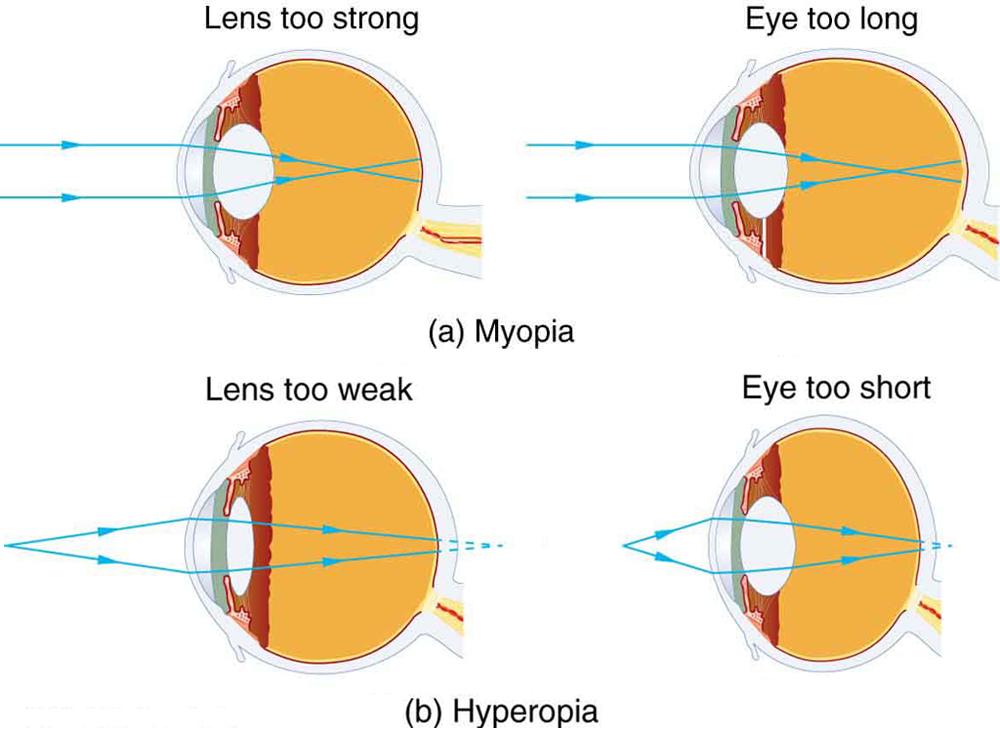 D Vision Myopia General Glasses