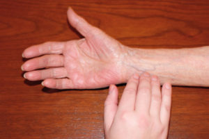 Healthcare provider placing fingers incorrectly on the ulnar side of wrist to take radial pulse