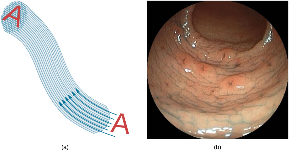 Figure (a) shows how an image A is transmitted through a bundle of parallel fibers. Figure (b) shows an endoscope image.