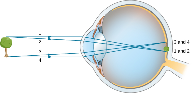 Figure shows a tree in front of an eye. Rays from the top and bottom of the tree strike the cornea of the eye. They are refracted, intersect in the middle of the vitreous humor and reach the retina. The image formed on the retina is tiny and inverted.