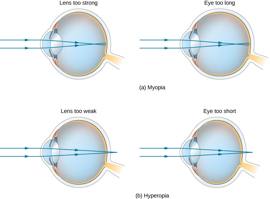 """Figure a shows two eyes labeled """"lens too strong"""" and """"eye too long"""". In both cases, parallel rays striking the cornea converge in front of the retina. Figure b shows two eyes labeled """"lens too weak"""" and """"eye too short"""". In both cases, parallel rays striking the cornea converge behind the retina."""