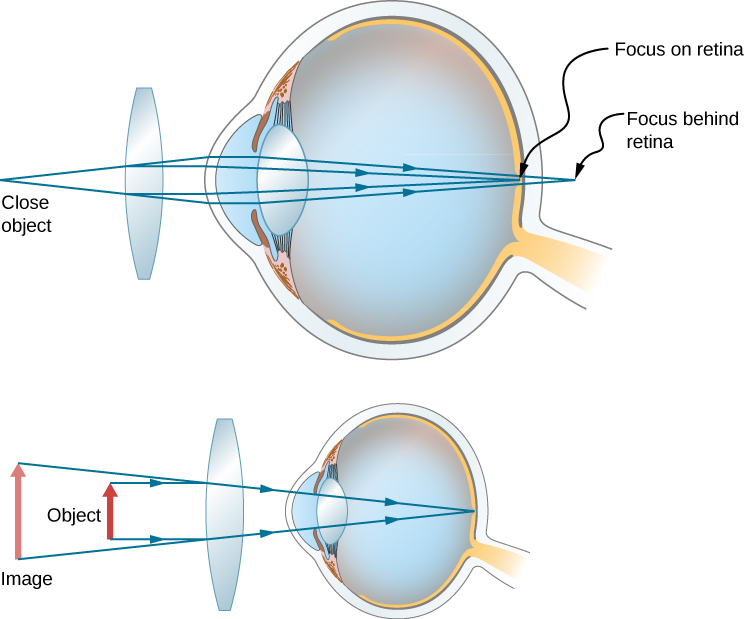 Figure shows two eyes with a bi-convex lens in front of each. The first one shows rays from a close object striking the lens and deviating towards each other before striking the cornea. They then converge on the retina. The second one shows an object close to the lens and an upright, larger image farther away from the lens.