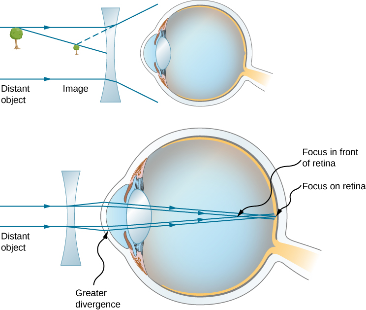 Figure shows two eyes with a bi-concave lens in front of each. The first one shows a tree as a distant object, and the image of the tree closer to the lens. The second one shows parallel rays from the distant object striking the lens and diverging before they strike the cornea. They then converge on the retina.