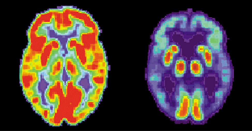 Two images of brains are shown. The one on the left has many red and orange areas and some blue areas. The one on the right is mostly blue with very small areas in red and yellow.