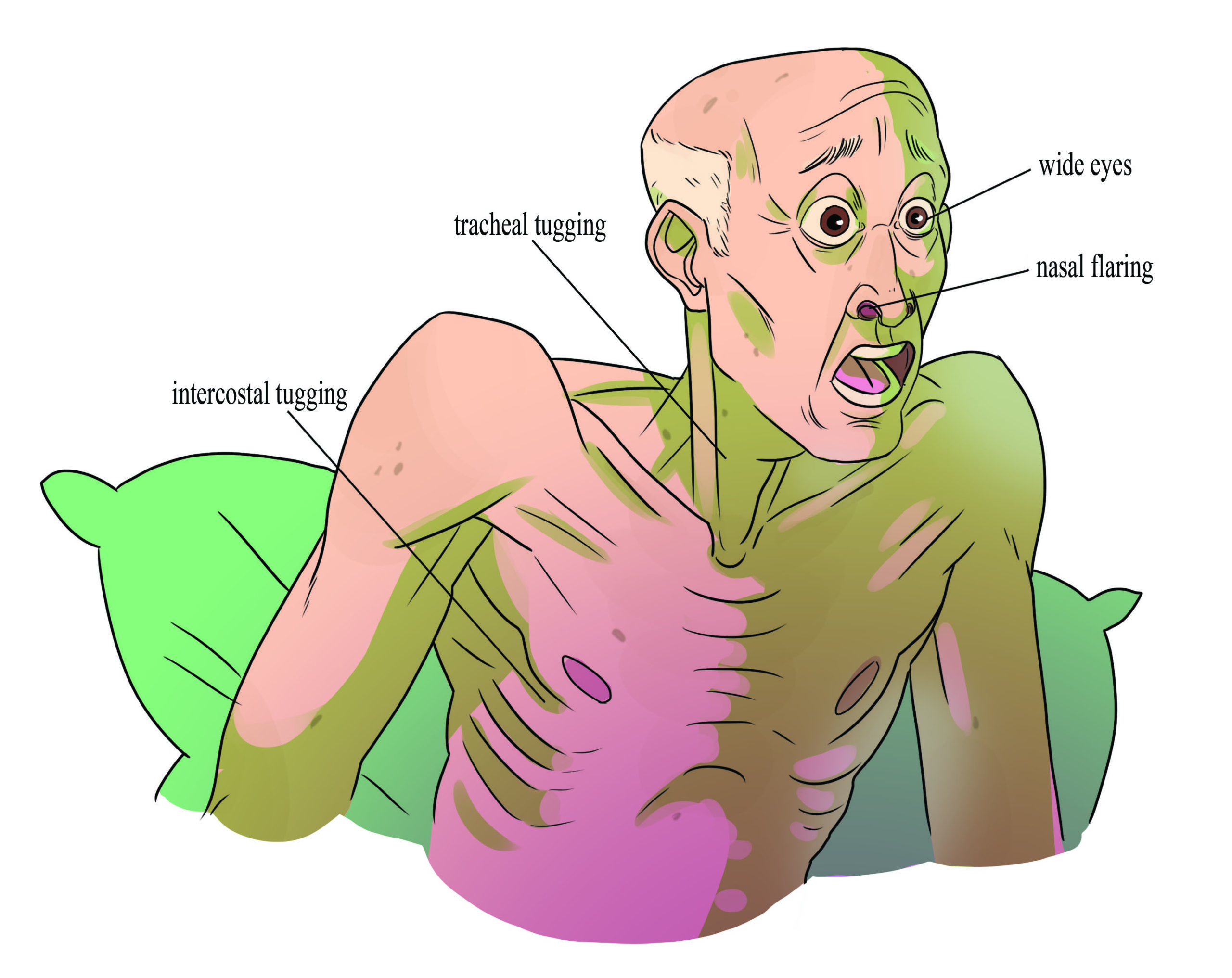 Signs of respiratory distress: Wide eyes, nasal flaring, tracheal tugging, and intercostal tugging.
